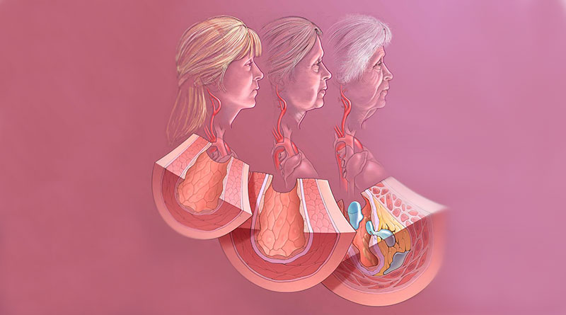 (Courtesy of Douglas Seals, Ph.D., Integrative Physiology of Aging Lab, University of Colorado Boulder)